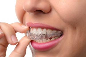 When-to-Start-Adult-Orthodontic-Treatment-300x200